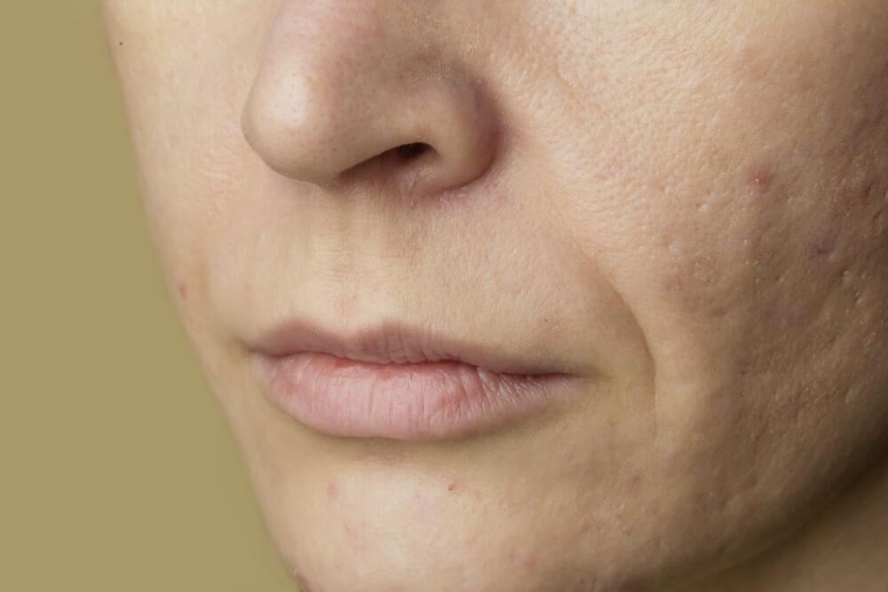 乾燥肌には保湿成分の入った洗顔料